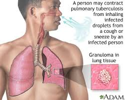 Anatomy And Physiology Of Lungs Anatomy And Physiology Tuberculosis