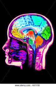Brain Mri Anatomy Normal Brain Mri Scan Stock Photos U0026 Normal Brain Mri Scan Stock