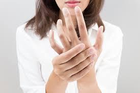 Psoriatic Arthritis And Hair Loss Rheumatoid Arthritis Abimbolamd