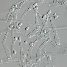 Paecilomyces variotii