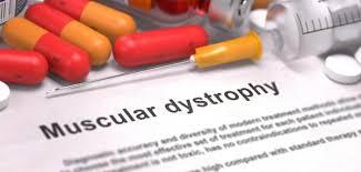 Duchenne muscular dystrophy SlideShare