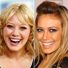 hilary duff teeth before
