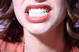 Tips For A Dazzling Smile by Brutal Truth The Dentists Don U0027t Tell You When They Promise You A