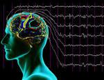 Çocukluk çağı Absans Epilepsisi | Uzunçorap