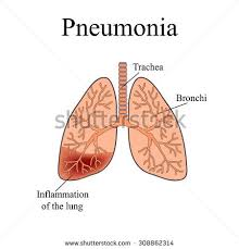Structure Of Human Anatomy Pneumonia Anatomical Structure Human Lung Vector Stock Vector