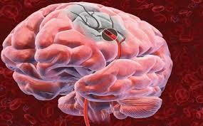isquemia cerebral x avc x aneurísma cerebral x derrame,isquemia cerebral x avc x aneurísma cerebral x derrame, isquemia cerebral x avc x aneurísma cerebral x derrame, isquemia cerebral x avc x aneurísma cerebral x derrame, isquemia cerebral x avc x aneurísma cerebral x derrame, isquemia cerebral x avc x aneurísma cerebral x derrame, isquemia cerebral x avc x aneurísma cerebral x derrame, isquemia cerebral x avc x aneurísma cerebral x derrame, isquemia cerebral x avc x aneurísma cerebral x derrame, isquemia cerebral x avc x aneurísma cerebral x derrame,isquemia cerebral x avc x aneurísma cerebral x derrame, isquemia cerebral x avc x aneurísma cerebral x derrame, isquemia cerebral x avc x aneurísma cerebral x derrame, isquemia cerebral x avc x aneurísma cerebral x derrame, isquemia cerebral x avc x aneurísma cerebral x derrame, isquemia cerebral x avc x aneurísma cerebral x derrame, isquemia cerebral x avc x aneurísma cerebral x derrame, isquemia cerebral x avc x aneurísma cerebral x derrame, isquemia cerebral x avc x aneurísma cerebral x derrame,isquemia cerebral x avc x aneurísma cerebral x derrame, isquemia cerebral x avc x aneurísma cerebral x derrame, isquemia cerebral x avc x aneurísma cerebral x derrame, isquemia cerebral x avc x aneurísma cerebral x derrame, isquemia cerebral x avc x aneurísma cerebral x derrame, isquemia cerebral x avc x aneurísma cerebral x derrame, isquemia cerebral x avc x aneurísma cerebral x derrame, isquemia cerebral x avc x aneurísma cerebral x derrame, isquemia cerebral x avc x aneurísma cerebral x derrame,isquemia cerebral x avc x aneurísma cerebral x derrame, isquemia cerebral x avc x aneurísma cerebral x derrame, isquemia cerebral x avc x aneurísma cerebral x derrame, isquemia cerebral x avc x aneurísma cerebral x derrame, isquemia cerebral x avc x aneurísma cerebral x derrame, isquemia cerebral x avc x aneurísma cerebral x derrame, isquemia cerebral x avc x aneurísma cerebral x derrame, isquemia cerebral x avc x aneurísma cerebral