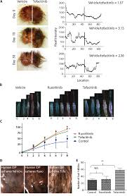 Psoriatic Arthritis And Hair Loss Pharmacologic Inhibition Of Jak Stat Signaling Promotes Hair