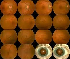 ophthalmic photographers u0027 society