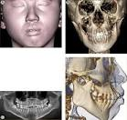 ScienceDirect.com - Seminars in Orthodontics - Progressive