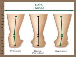 Anterior Talofibular Ligament Repair Dr Tarek Ankle Pain1
