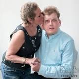 Face Transplant Recipient Patrick Hardison Gets Kiss from His Donor's Mother ...