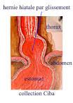Cure de la hernie hiatale (et du reflux gastro-oesophagien ...