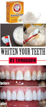 207 best home remedies for gum u0026 tooth care images on pinterest