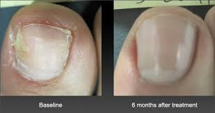 laser nail fungus treatment dallas tx