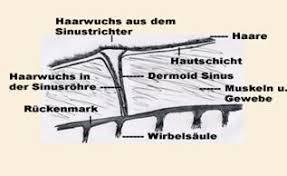 Dermoid sinus có cấu trúc như một nang nằm dưới da.