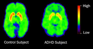 Not Correlated with ADHD