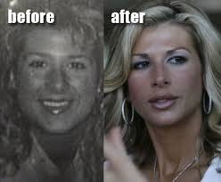 alexis_bellino_before_and_after.jpg&t=1