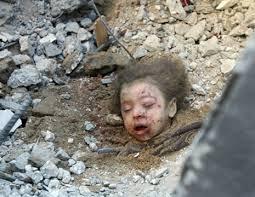 محبين فلسطين ادخلووا شوفو مذبحه ياسن Martyr-33.jpg