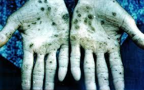 Arsenic-induced hyperkeratosis