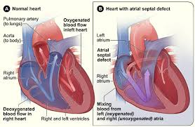 normal heart and heart with