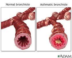 ما هو التهاب الشعيبات الهوائية؟ وكيف يحدث؟ Attachment