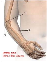 TOMMY JOHN: a surgical