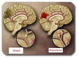 Lečenje i prevencija moždanog udara
