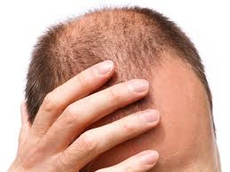 Pumpkin Seed Oil For Hair Loss Dosage by 12 Best Home Remedies For Baldness Organic Facts