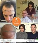 زين هير لزراعة الشعر و التجميل