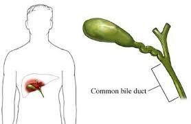 تعرف أكثر عن هذا الجزء من جسمك المرارة