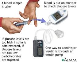 Blood Glucose Ranges