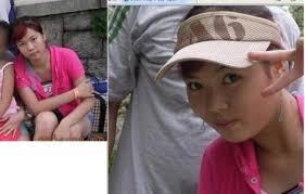 بعض المشهورين في كوريا قبل و بعد عملية التجميل images?q=tbn:ANd9GcT
